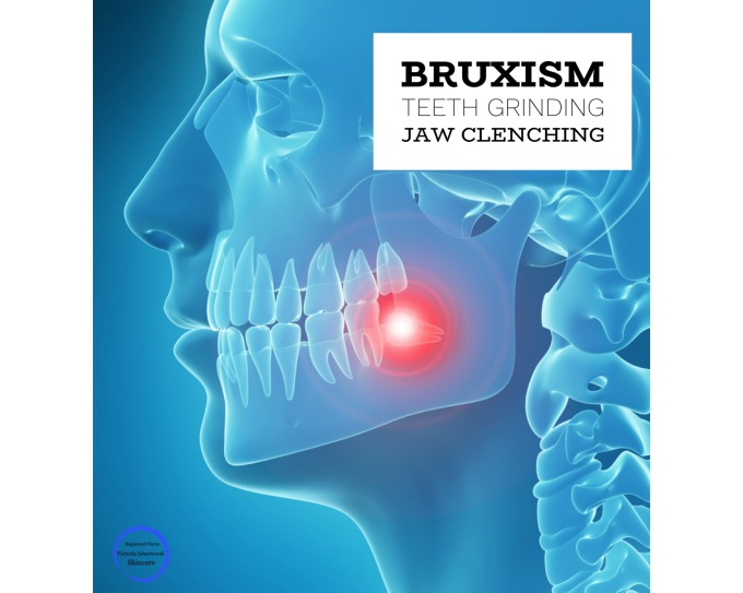 Bruxism / Jaw Clenching